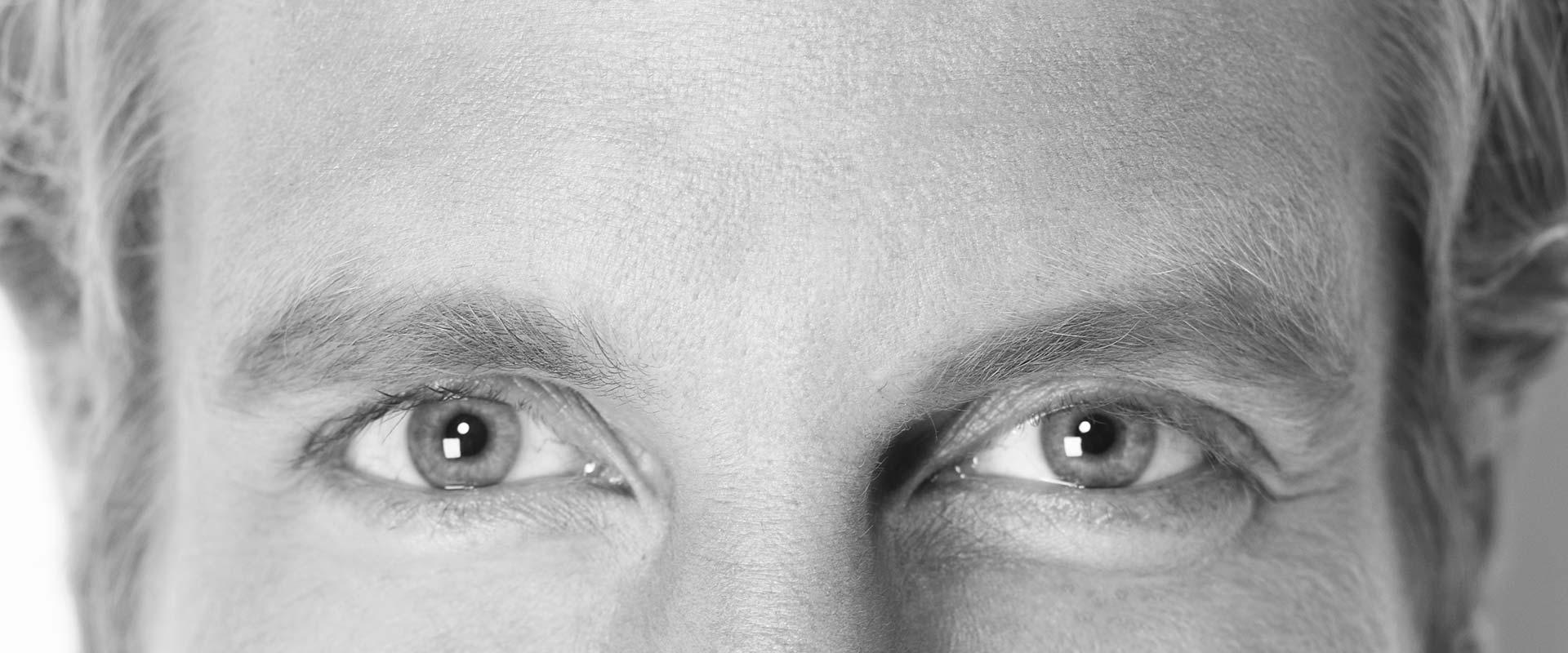 botulinum-filler-faltenbehandlung-stirnfalte