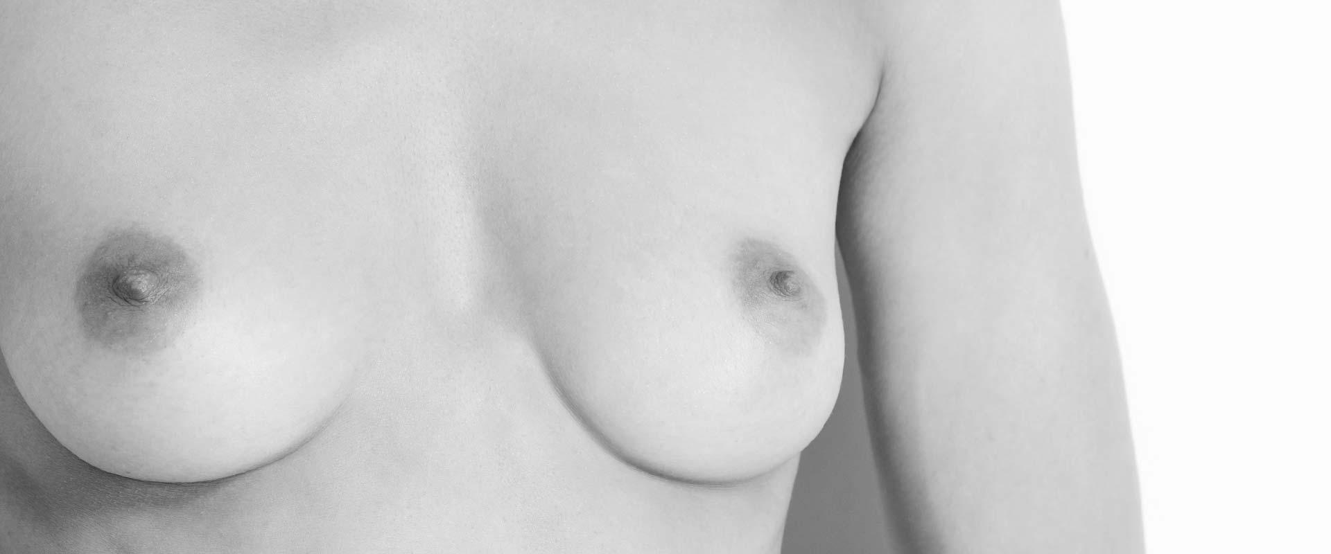 brustvergroesserung-brustimplantate-silikon