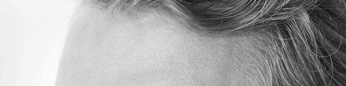 stirnfalten, falten entfernen, zornesfalte, glatte haut, botulinum
